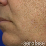 Pigmented Lesions After